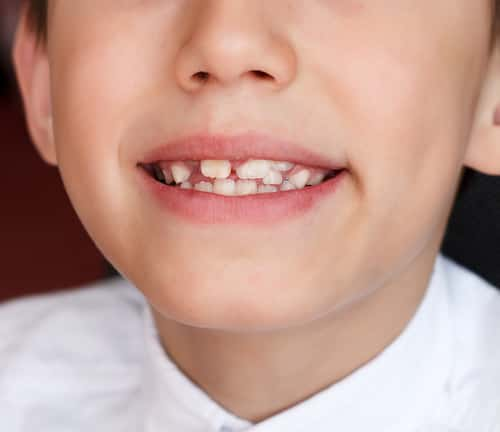tooth gap