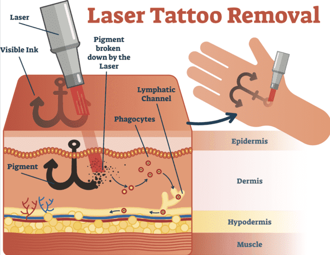 tattoo removal laser singapore