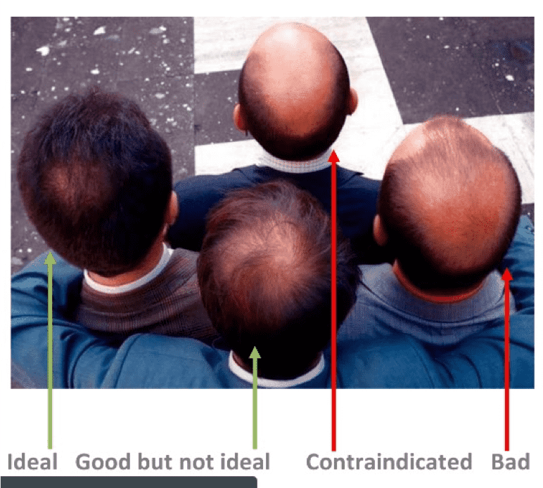 different kinds of male balding