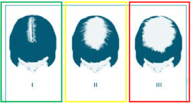 hair loss in women singapore