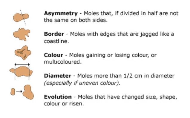 moles skin cancer singapore