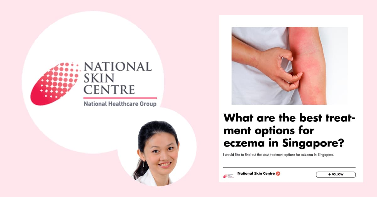 Eczema Doesn't Have To Last Forever! Singapore's National Skin Centre Tells You All Need To Know About This Pesky Condition undefined