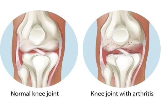 knee joint with arthritis singapore