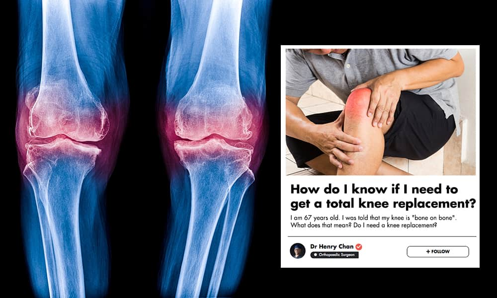 Your Knee Pain Might Be More Serious Than You Think! This Orthopaedic Surgeon Tells You What To Look Out For undefined