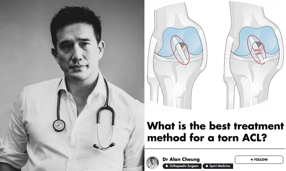 ACL Tears Don't Heal Well On Their Own, This Singaporean Orthopaedic Sports Surgeon Explains Why undefined