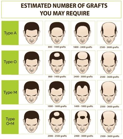 hair loss FUE singapore