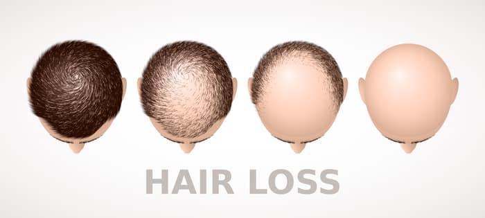 balding singapore