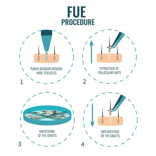 FUE hair transplant process singapore