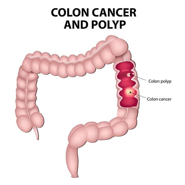 polyps in colon singapore