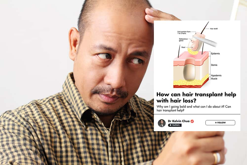 Frustrated With Hair Loss? This Singaporean Doctor Explains How A Hair Transplant Might Help undefined