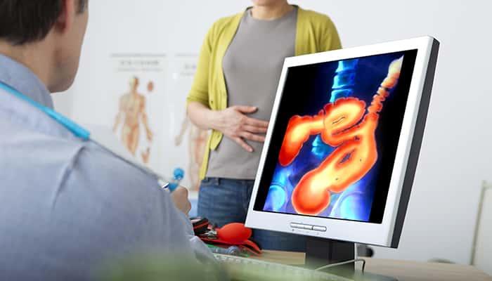colon cancer screening singapore