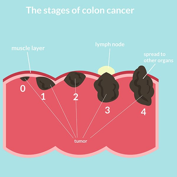stages of colon cancer singapore