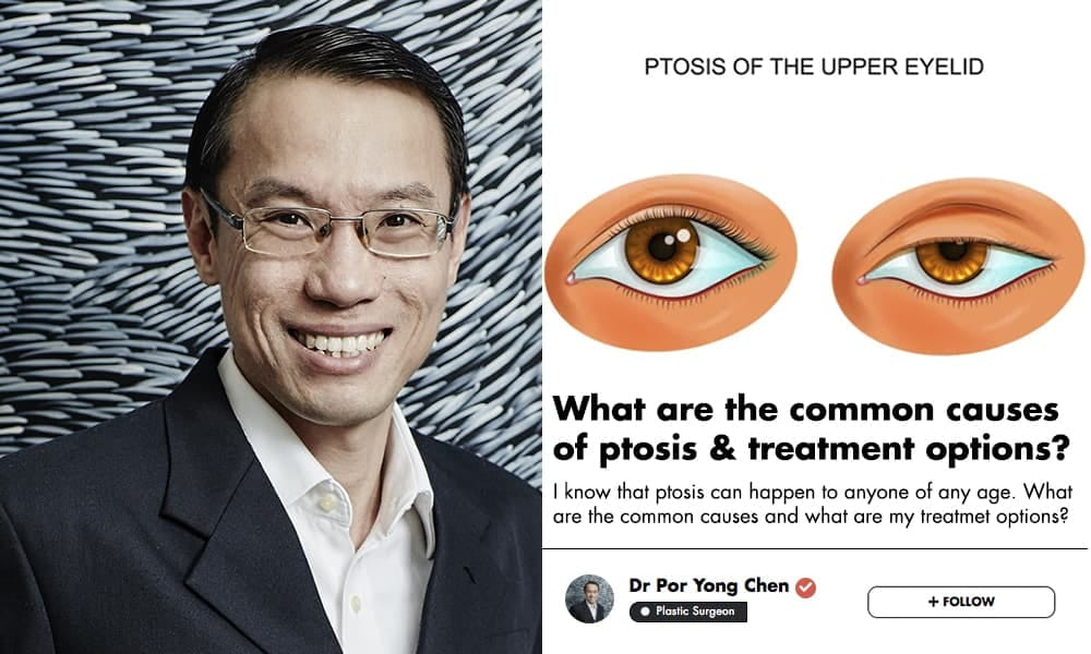 Drooping Eyelids Are A Real Medical Condition; This Singaporean Plastic Surgeon Explains How To Fix It undefined