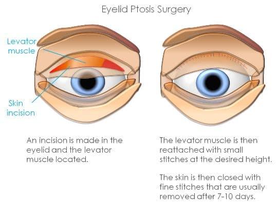 ptosis surgery singapore
