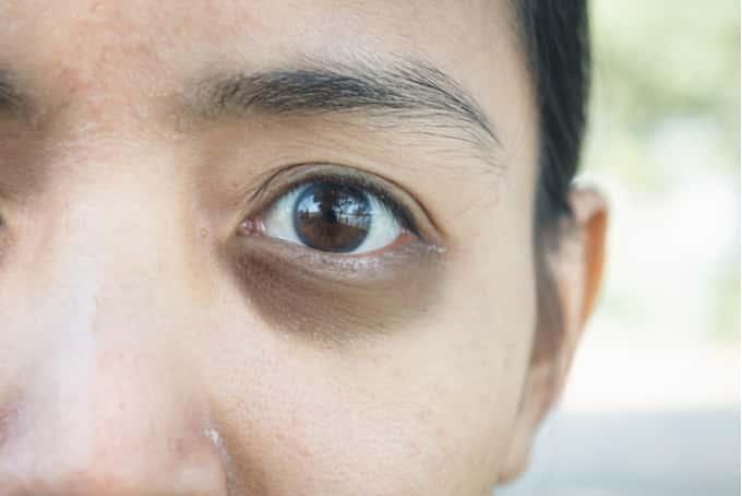 dark eye circle treatments singapore