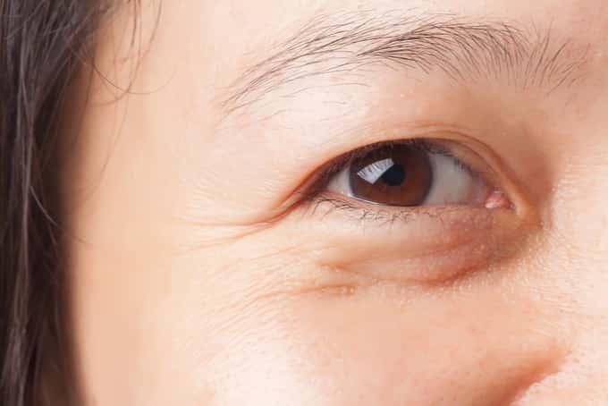 eye bag treatment singapore 2
