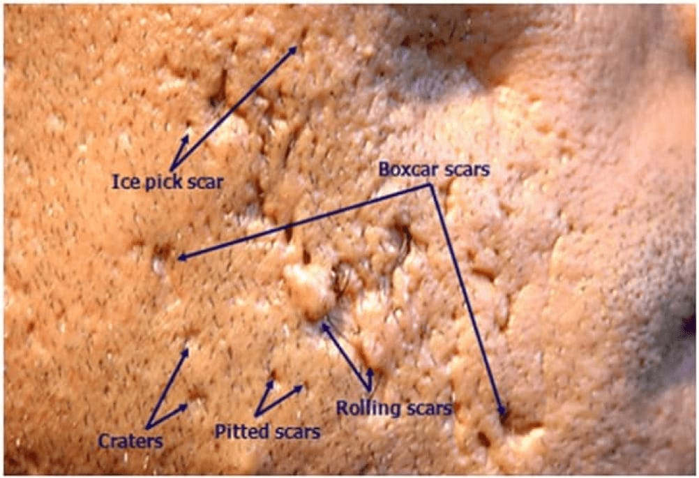 types of acne scars singapore