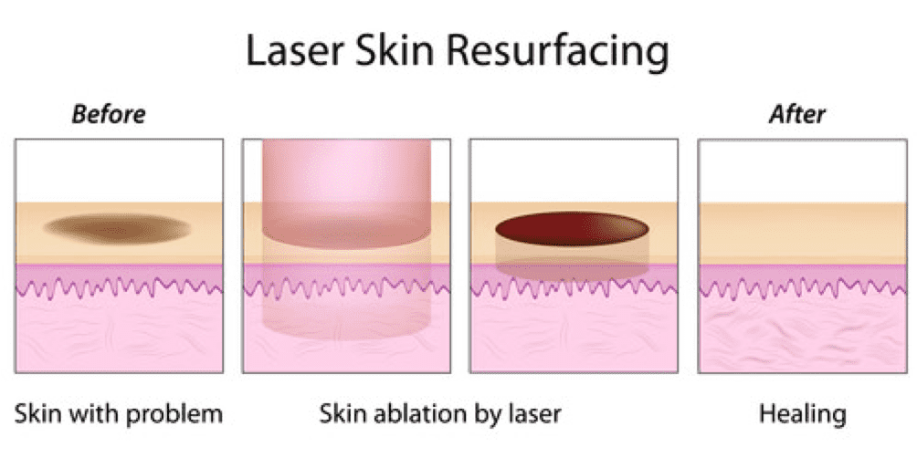 laser skin resurfacing singapore