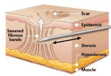 Subcision of scars singapore