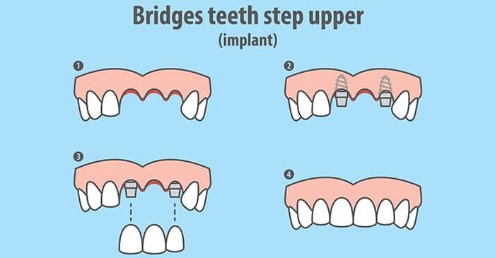 replace missing tooth bridges singapore