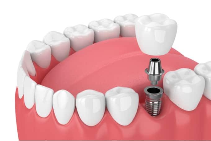 dental implant procedure singapore