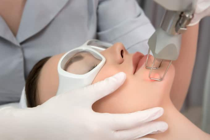 fractional laser in singapore for large pores
