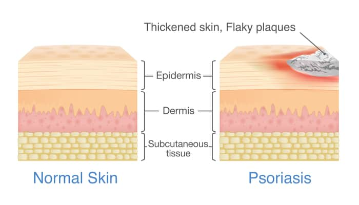 what is psoriasis singapore