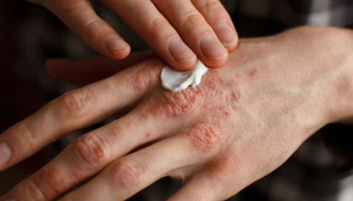 topical medication for psoriasis