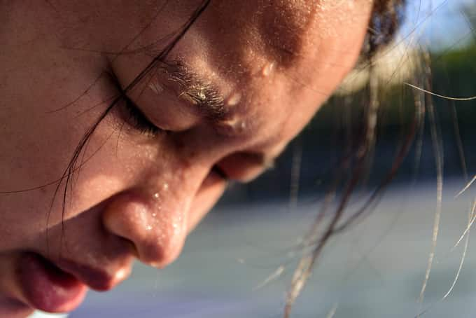 sweating while exercising psoriasis
