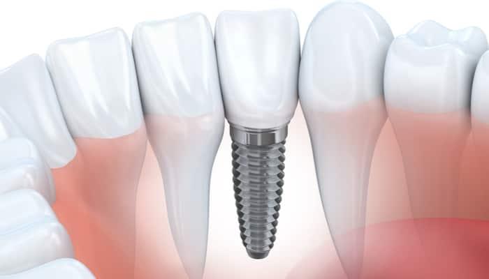 dental implant singapore