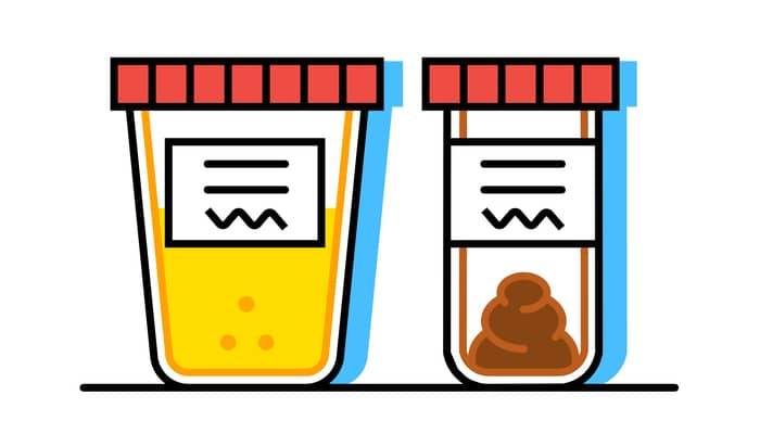 urine and stool colour food poisoning singapore