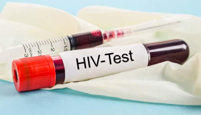 HIV testing singapore