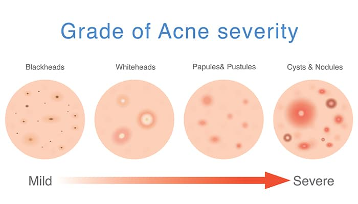 grade of acne severity singapore