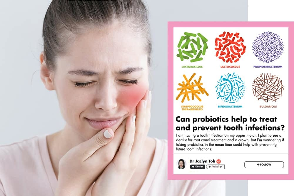 Can Probiotics Help Prevent Tooth Infections? These Singaporean Dentists Discuss undefined