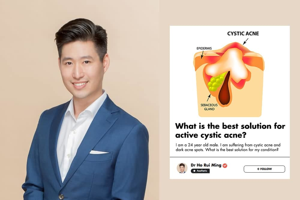 This Singaporean Aesthetic Doctor Shares His Advice How To Treat Cystic Acne undefined