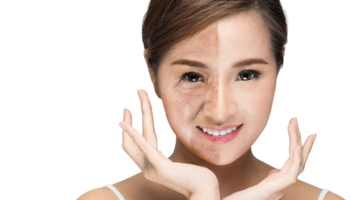 non surgical facelift for aging face