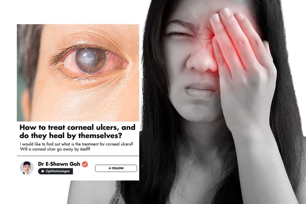 Poor Contact Lens Hygiene Is The Most Common Cause Of Corneal Ulcers; An Ophthalmologist Explains Your Treatment Options undefined