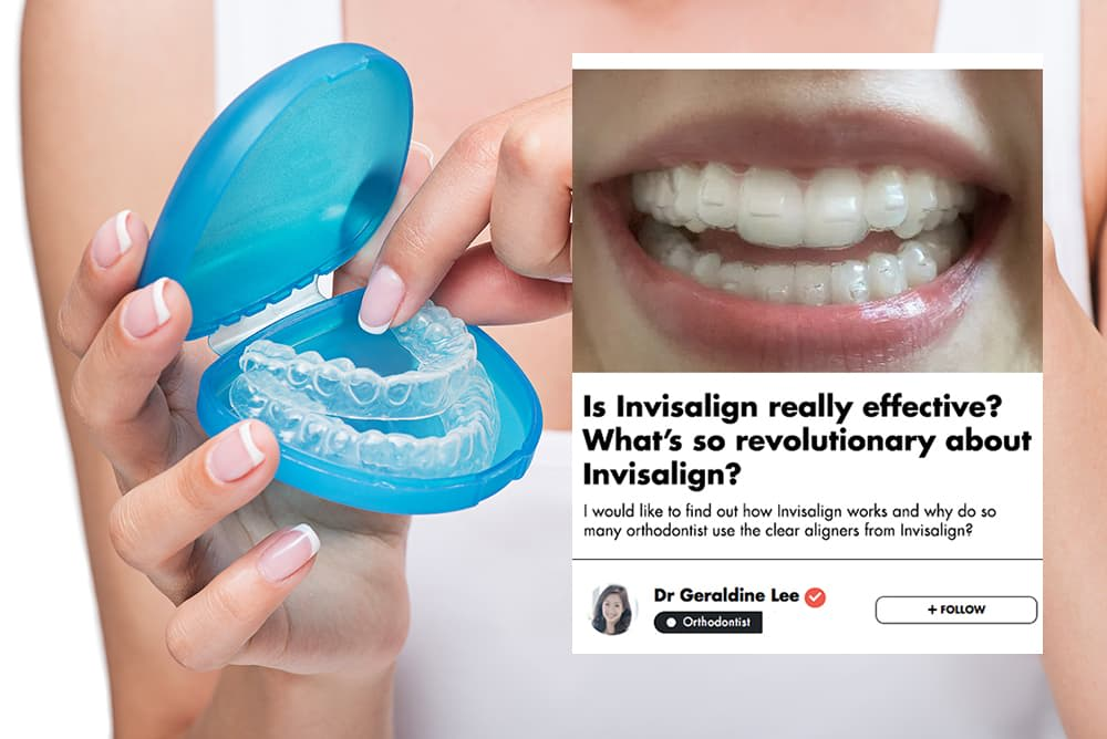 This Singaporean Orthodontist Shares The Most Important Things You Should Know About Invisalign  undefined