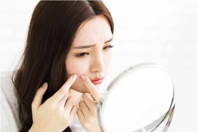 dont squeeze clogged pores