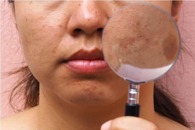 hyper pigmentation more common in asian