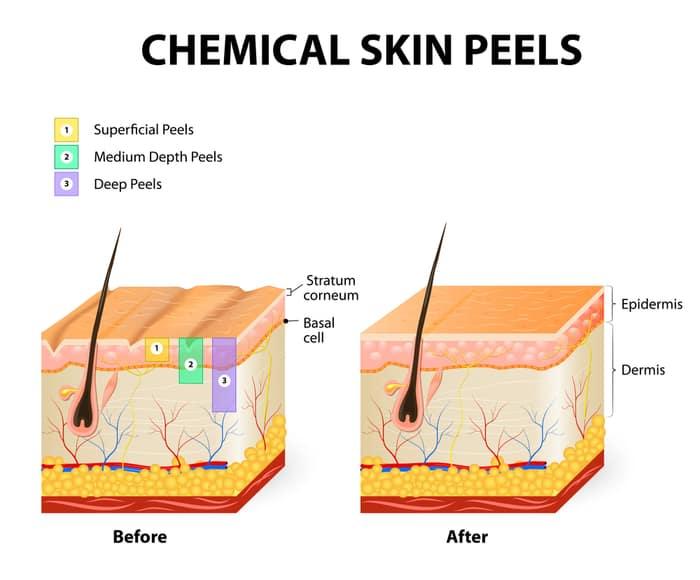 chemical skin peels singapore