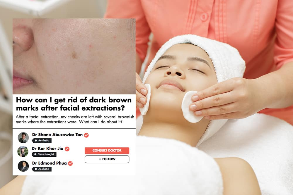 Brown Marks After A Facial Extraction? These Singaporean Doctors Explain How To Get Rid Of Them undefined