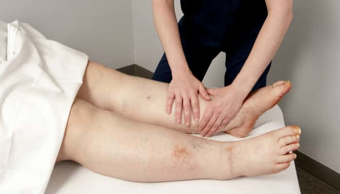 massage for a lymphoedema patient
