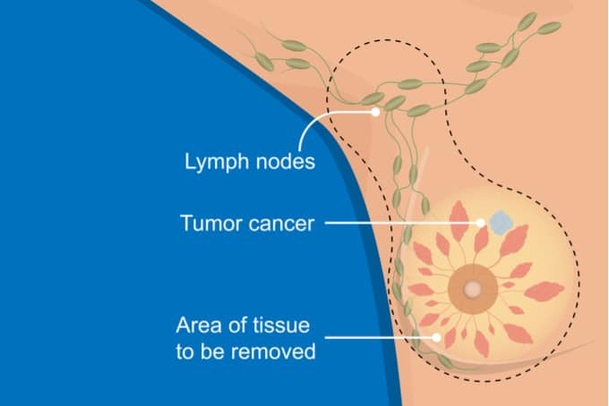 Lymphoedema and breast cancer