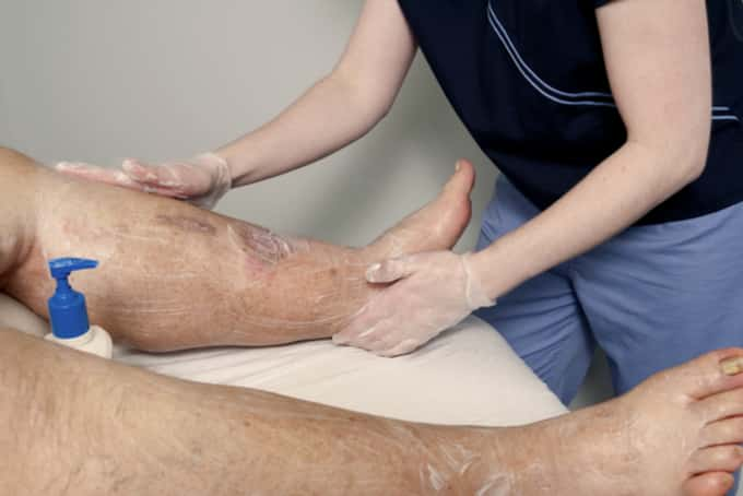 massage for lymphoedema patients singapore