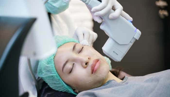 Laser or frequency Skin Tightening Face Lift treatment