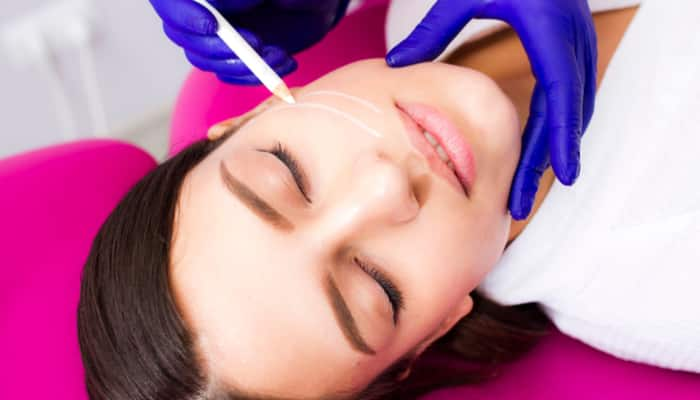 nonsurgical facelift candidate