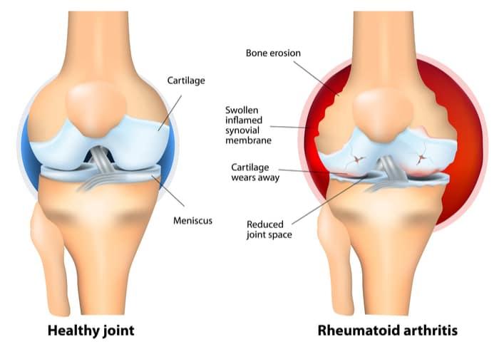TKR rheumatoid arthritis in singapore