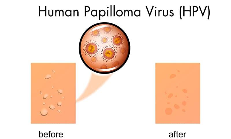 HPV virus singapore