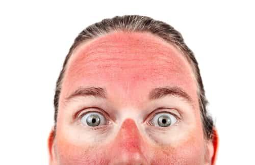 Sunburnt man